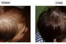 Протезиране на коса София